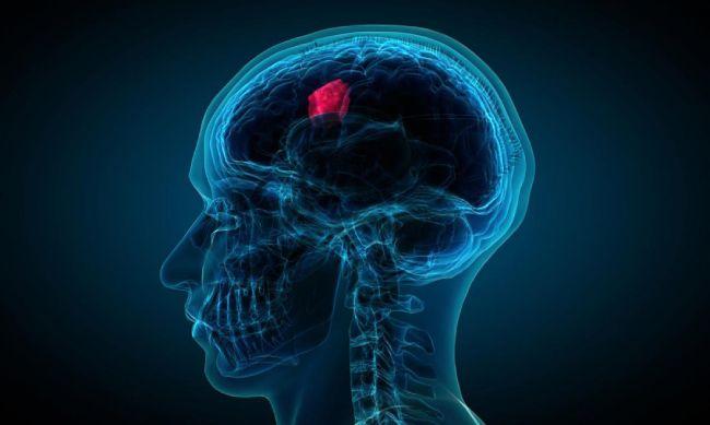 dấu hiệu cảnh báo bệnh u não mà nhiều người không biết